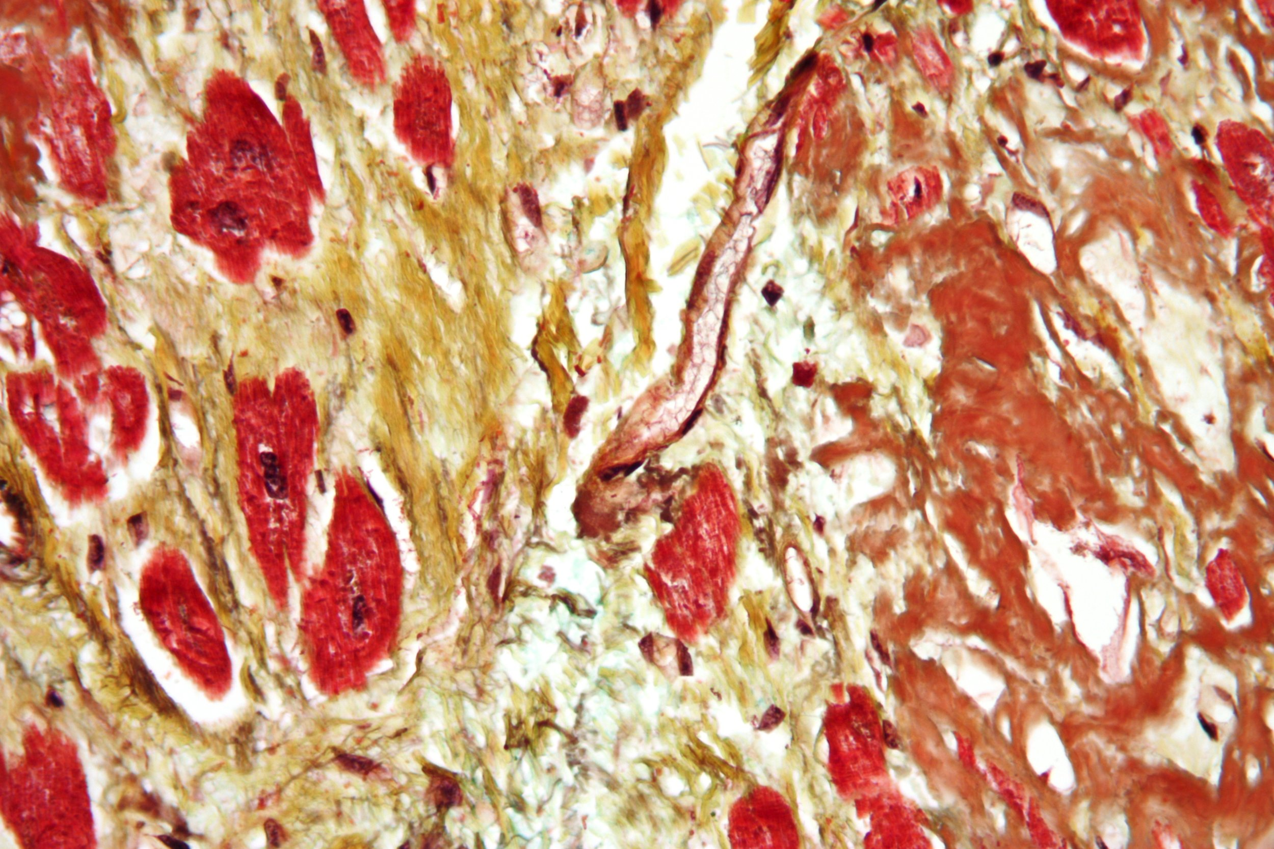 Micrograph of a heart with fibrosis (yellow)