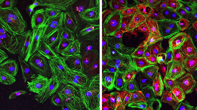 Cardiomyocytes from patients with Duchenne muscular dystrophy (DMD) corrected by CRISPR-Cpf1 show restored dystrophin expression (red).Credit: SCIENCE ADVANCES, Y. ZHANG ET AL.