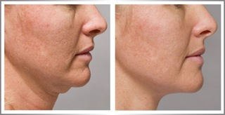 Facial tightening before and after