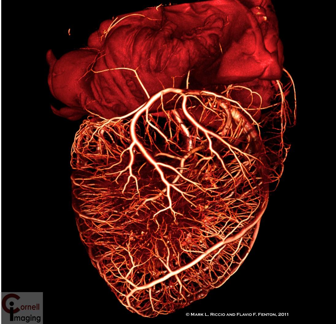 heartVasculature.jpg