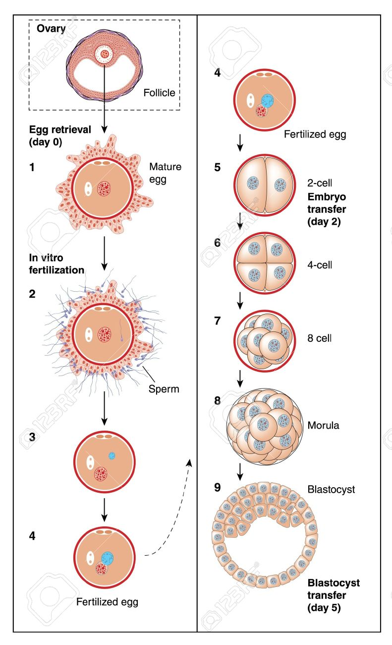 15123319-The-stages-of-in-vitro-fertilization-from-follicle-and-egg-retrieval-.jpg