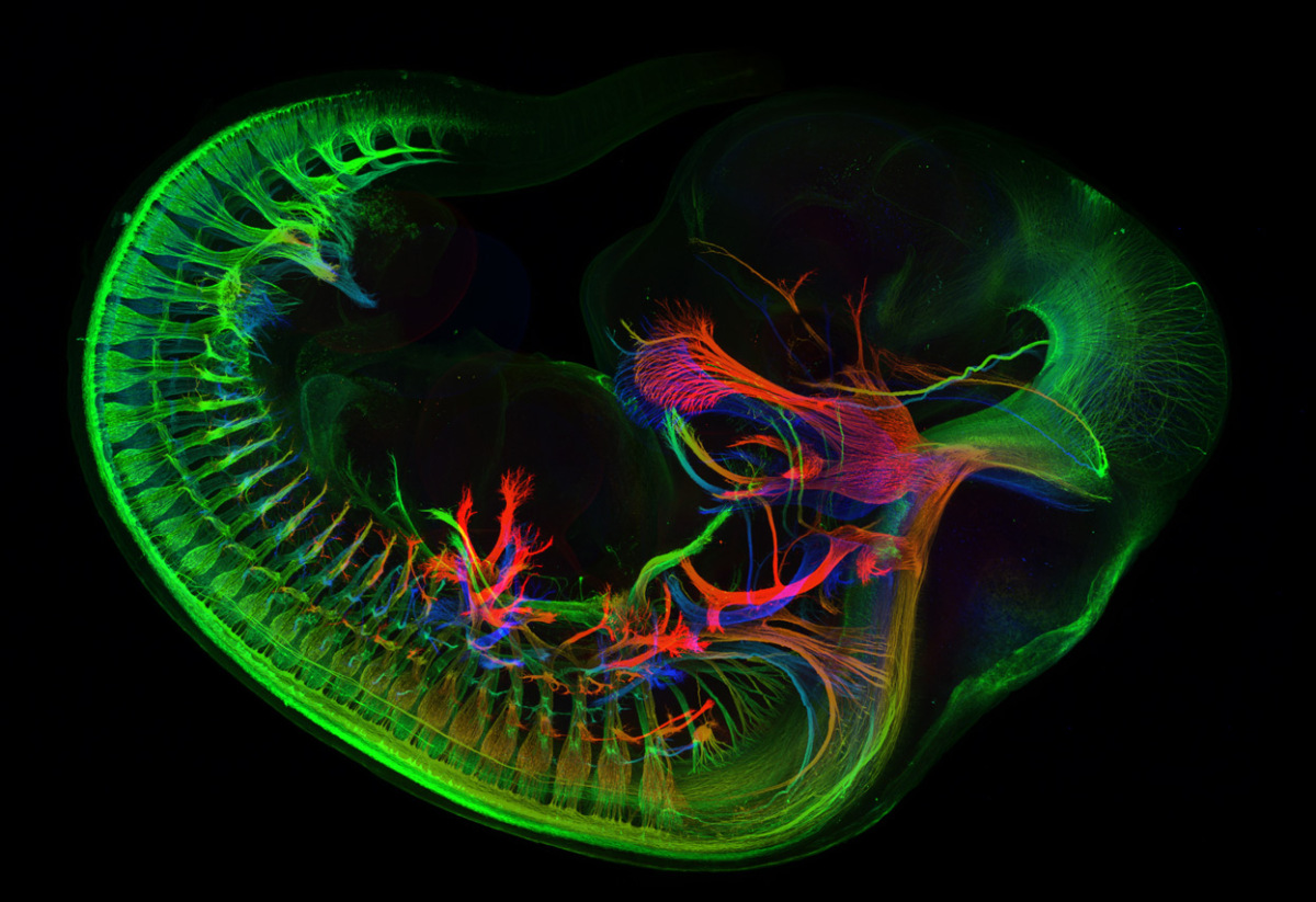 14th-place-winner-an-image-of-peripheral-nerves-in-e11-5-mouse-embryo-by-mr-zhong-hua.jpg