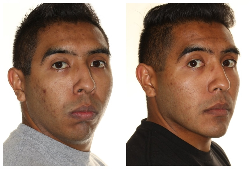 Functional Esthetics. - In this patient, orthognathic surgery positioned the bones and teeth in such a way that his lips can now close without using his facial muscles. Before surgery he would use his upper lip (which causes nasal narrowing and nasolabial folds), his mentalis or chin muscle (which causes dimpling and balling) and his mandible (which causes muscle pain and joint noises) when he closes his mouth. Now with his lips touching passively, the nasolabial folds are flattening, the chin is more relaxed and esthetic and his mandible is comfortable. This is Functional Esthetics.