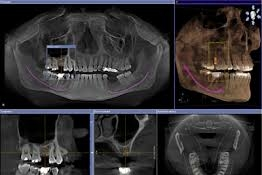 Cone Beam CT Scan -