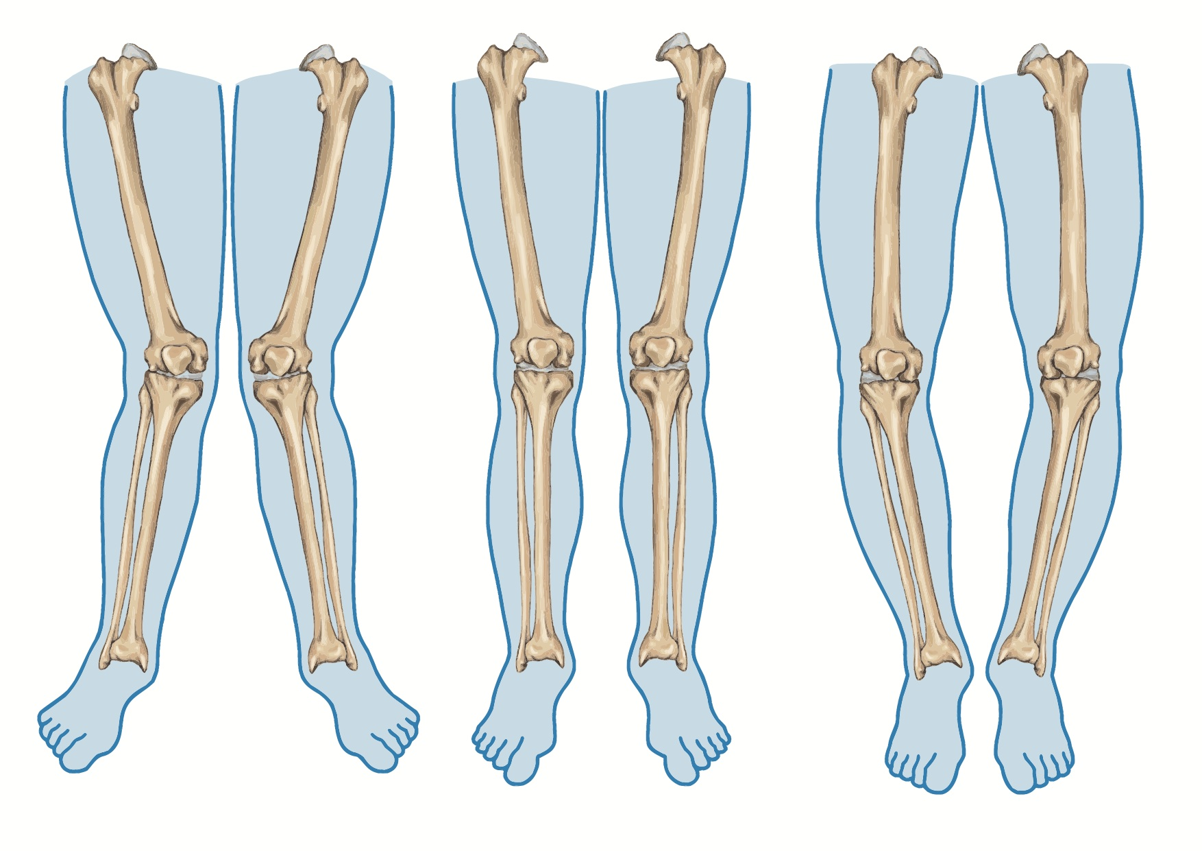 Three basic knee alignments: knees in, knees forward, and knees out. (Stock photo)
