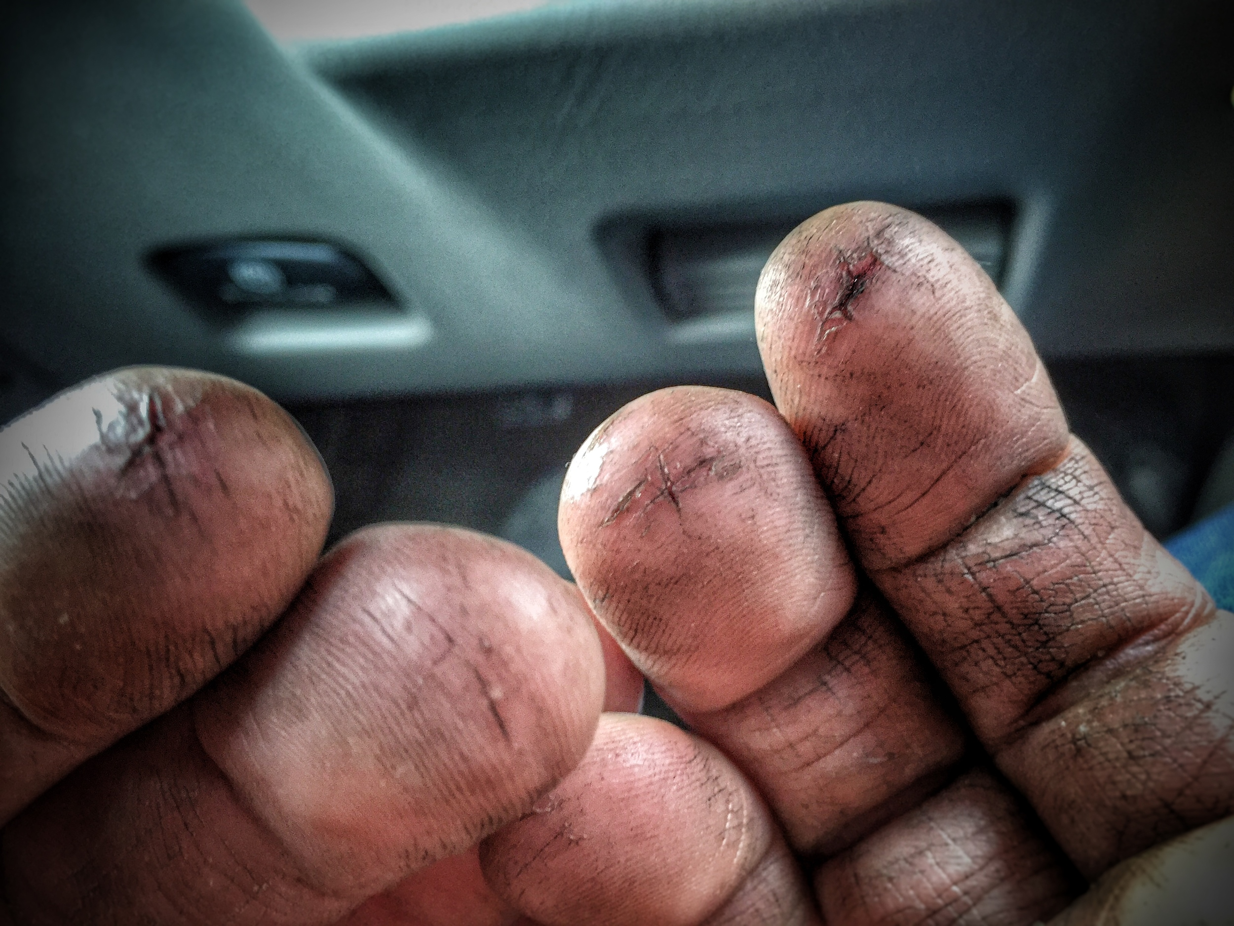 Fingers: Cracked and bleeding after a long and trying project in Maryland.
