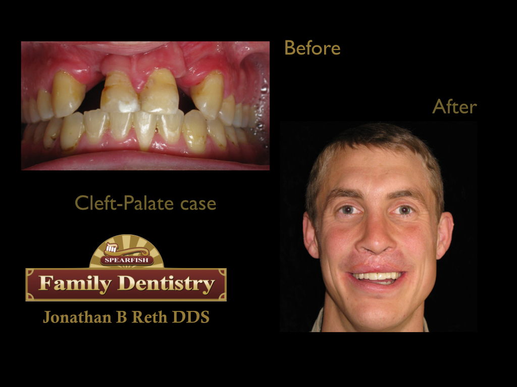 This gentleman was born with a cleft-palate/lip and wore a retainer his whole life.