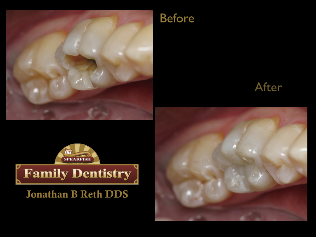 Direct resin composite fillings in less than 1 hour