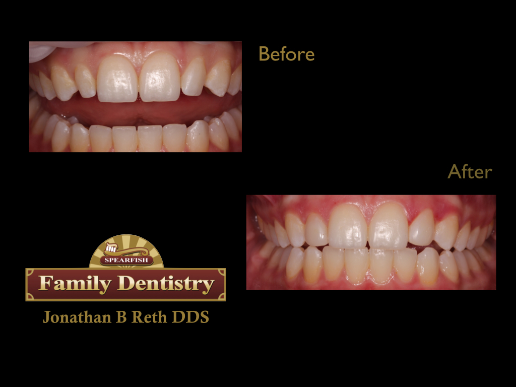 Restoring Peg-Lateral incisors with direct chair side bondings.