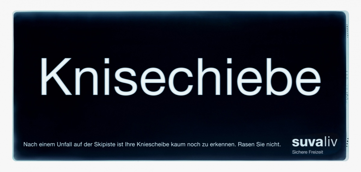 suva_roentgen_kniescheibe2.jpg