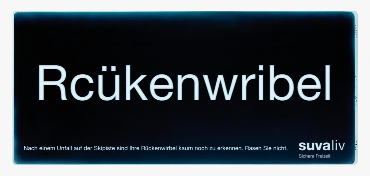 suva_roentgen_rueckenwirbel_1.jpg