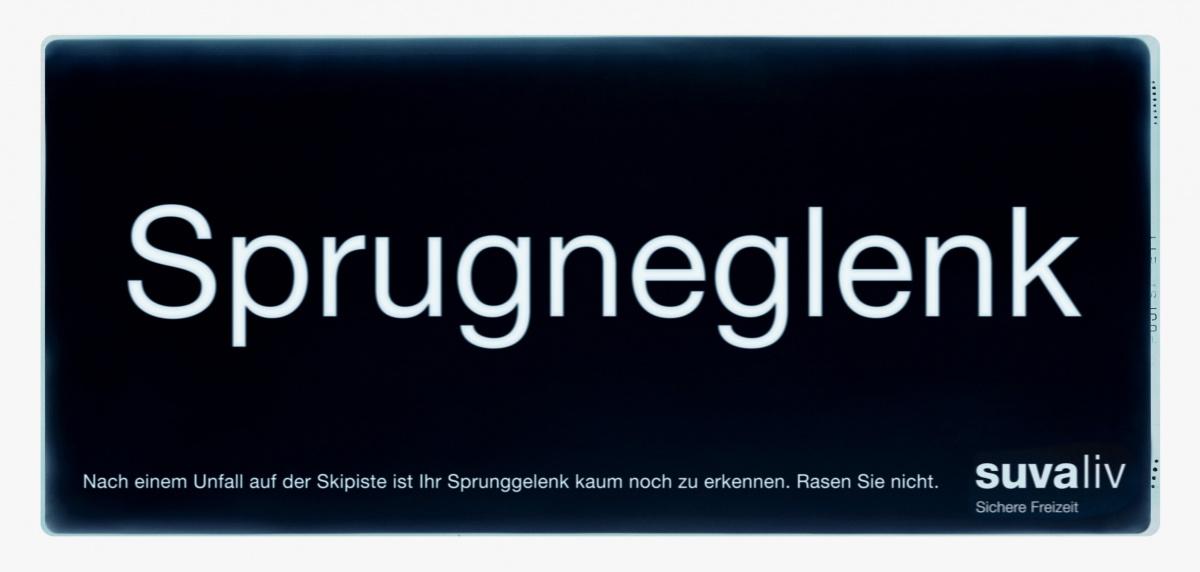 suva_roentgen_sprunggelenk2.jpg