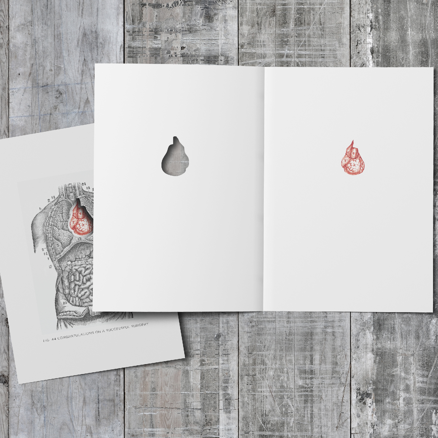 SUCCESSFUL SURGERY |  Greeting Card Series