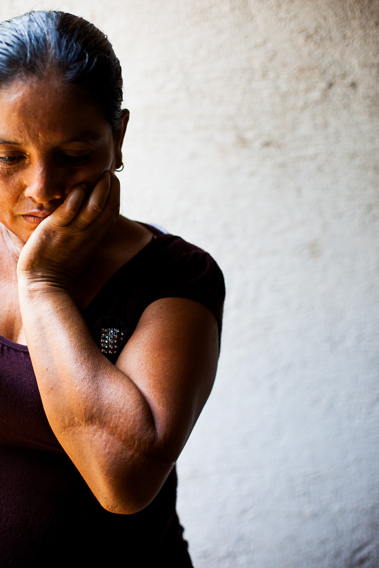 Elubia Luna Tizol shielded her head with her arm during a murder attempt with a machete by her brother. He served in the Guatemalan Civil War and suffers from post traumatic stress disorder.