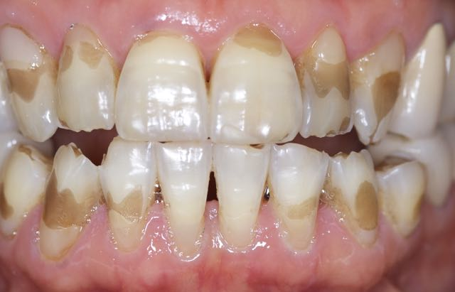 Patient before treatment -- significant loss of enamel with heavy staining  Please note that lighting values were kept as similar as possible between before and after images