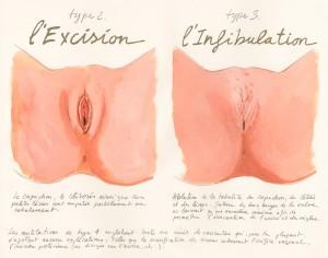 Infibulation-300x236.jpg
