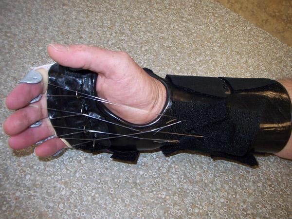 Passive PIP Flexion Splint