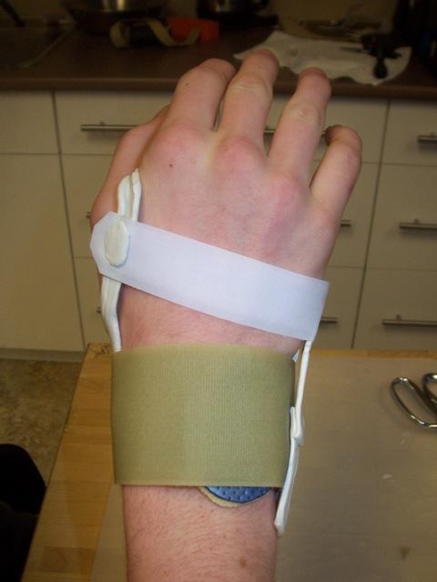 Carpal Instability Splint