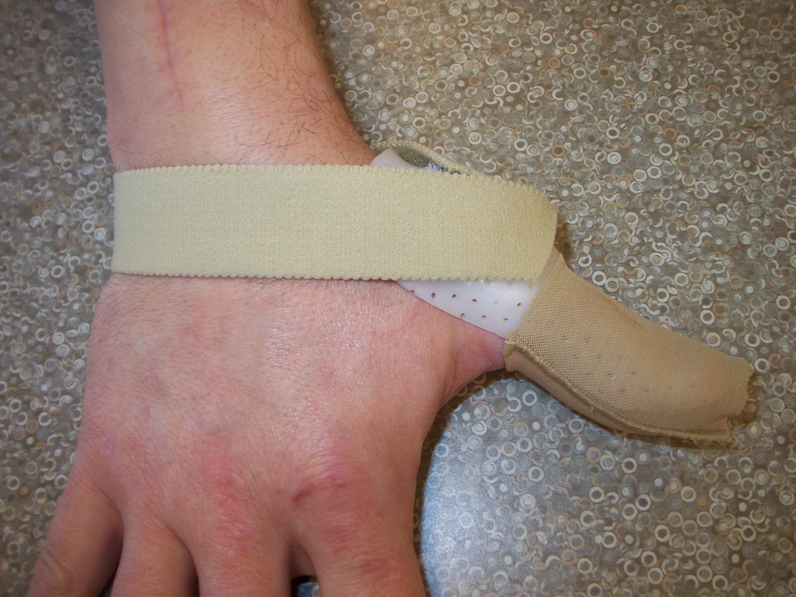 Tip Extensor Splint - Top View