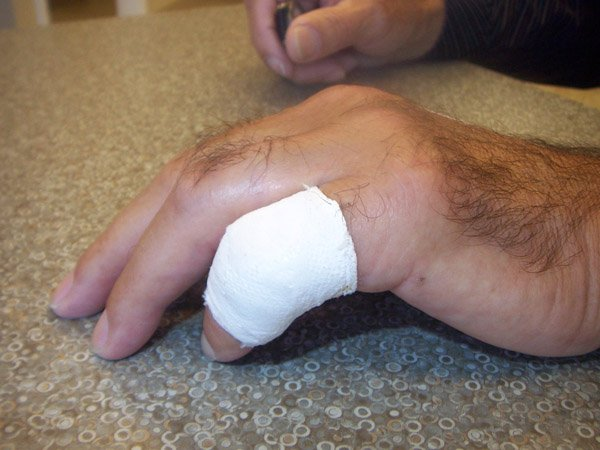 PIP Finger Cast