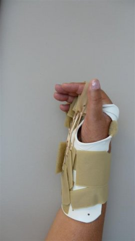 Forearm Based MP Flexion Splint