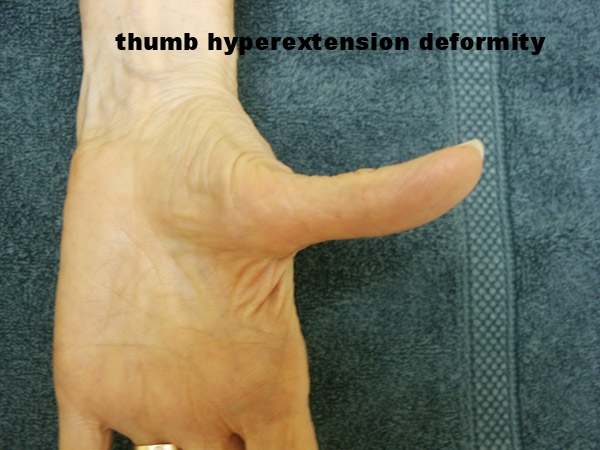Thumb Arthritis - Before