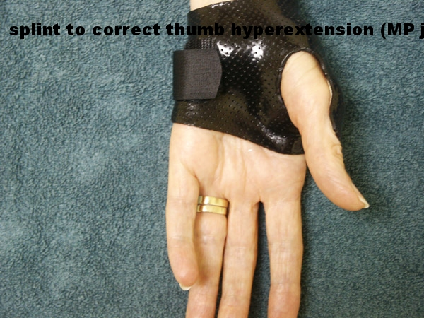 Thumb Arthritis - After