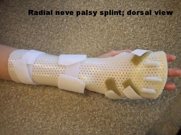 Radial Nerve Palsy Splint