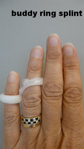 IP Ligament Injury Buddy Ring