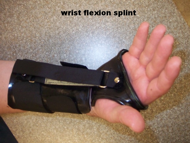Wrist Flexion Splint