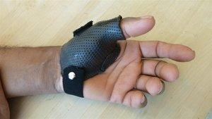 custom splinting.jpg