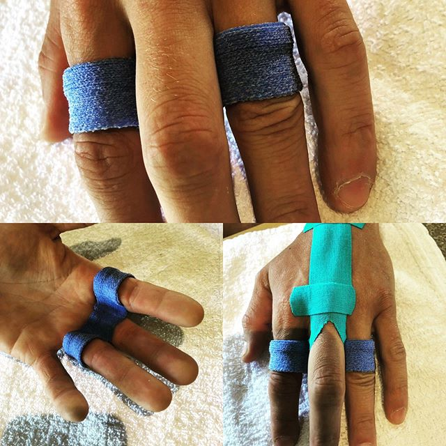 A « yoke » ring type splint made out of #orficast to support a digit impaired by a saggital band tear of the long finger. Extra support with #kinesiotape to help reduce the edema around the metacarpal joint (mp). In this splinted position, the extensor tendon no longer subluxes when the patient makes a fist. #handinjuries #customsplint #saggitalbandinjury #certifiedhandtherapist #occupationaltherapy