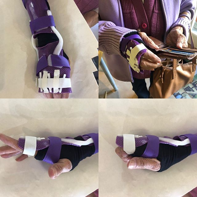 This lovely 86 year old artist had an unfortunate attrition tendon rupture to her long, ring and little fingers, unable to open her hand to reach or grasp. Only the index remained intact (EI). A dorsal forearm@based hinged splint was made to temporarily replace the function of the ruptured tendons.  With this splint, she can sketch again and function until her upcoming surgery helps to restore function. Design to be improved to support the dorsal elastic. #extensortendontear #customsplint #functionalsplint #certifiedhandtherapist #nevertooold