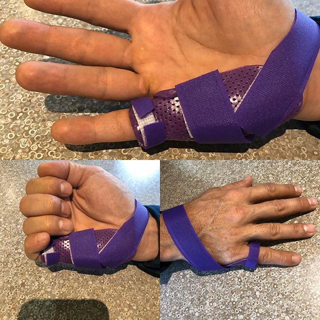 """MP"" blocking splint to address a trigger finger. Preventing active flexion a the metacarpal joint (mp) while allowing tendon gliding across the other 2 distal joints will settle the triggering at the A1 pulley( distal palm). #customsplint #triggerfinger #certifiedhandtherapist"