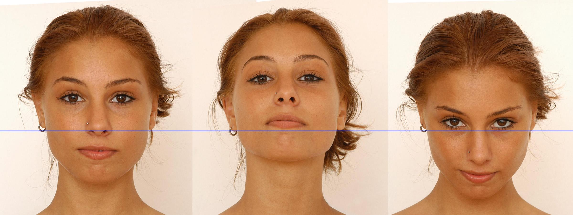 base of ear v tilt importance.jpg