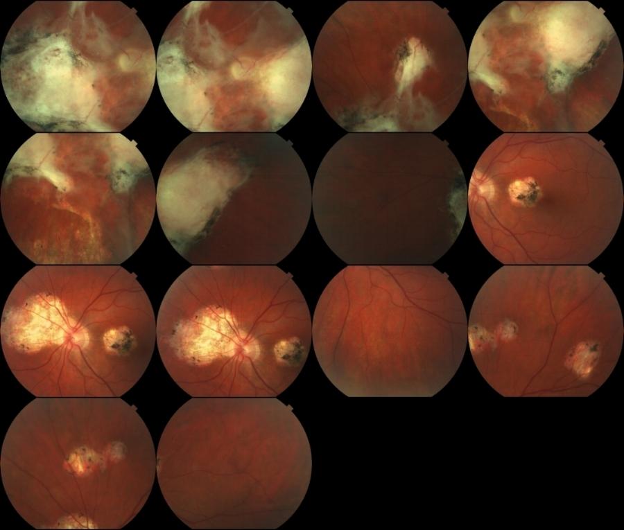 Patrick Anderson's retinal scans