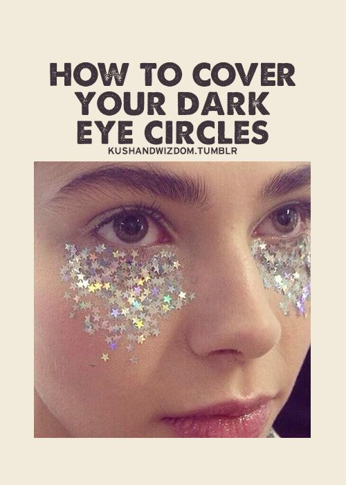 dark eye circles