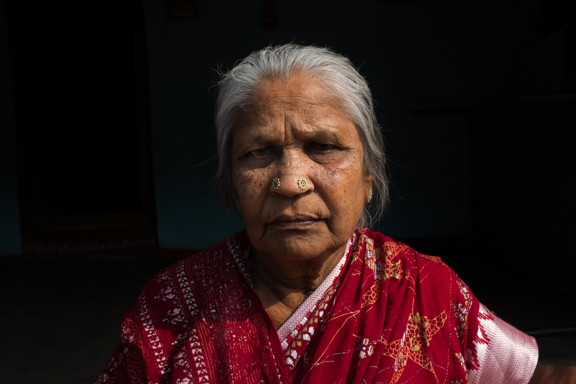 Pandava Suryakantam, 70 of Balliptugga, AP, India is a CKDnT patient and widow of the same disease.