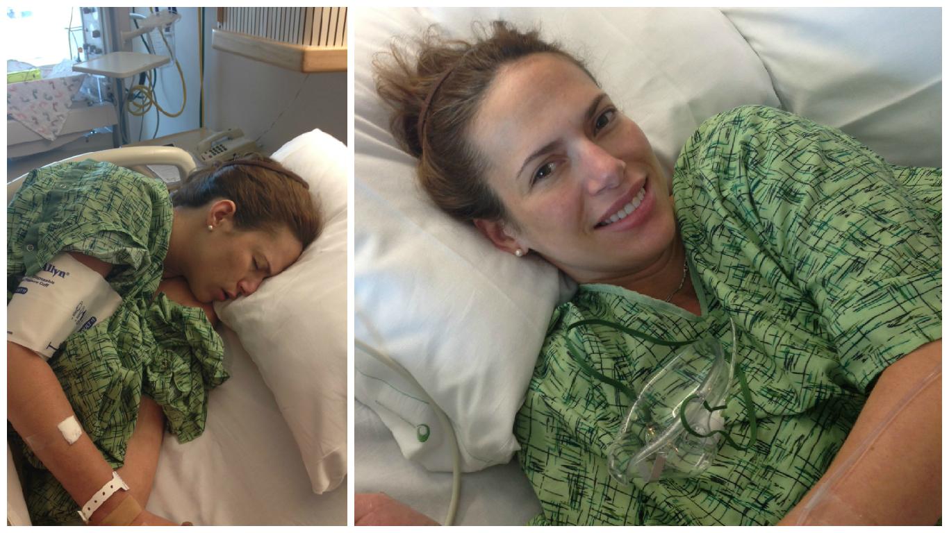 Left: Pre-epidural; Right: Post-epidural.