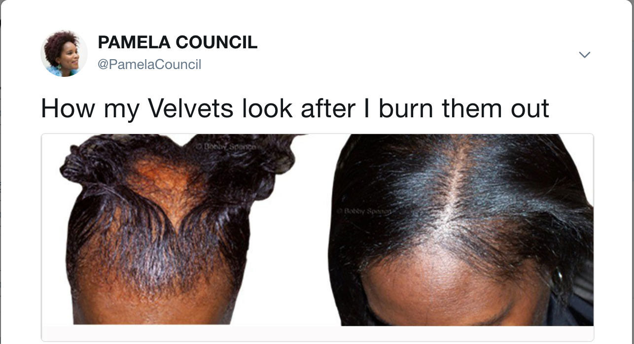[alopecia from hair relaxer chemical burn]