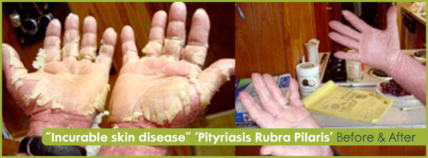 Reverse Skin Disorders NATURALLY without Drugs — The