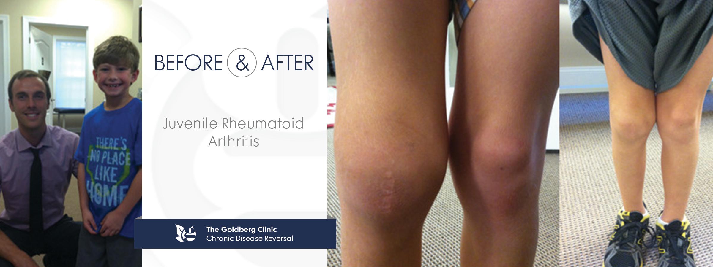 Reverse Juvenile Rheumatoid Arthritis