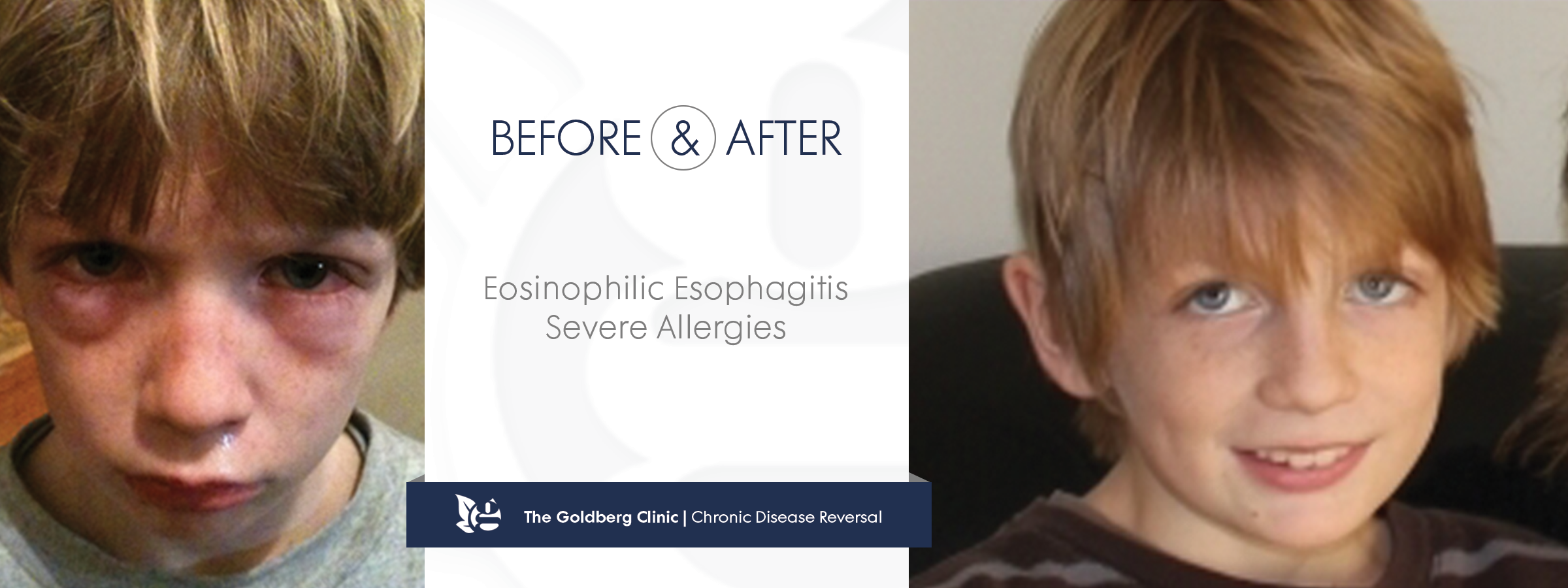Eosinophilic Esophagitis Reversed