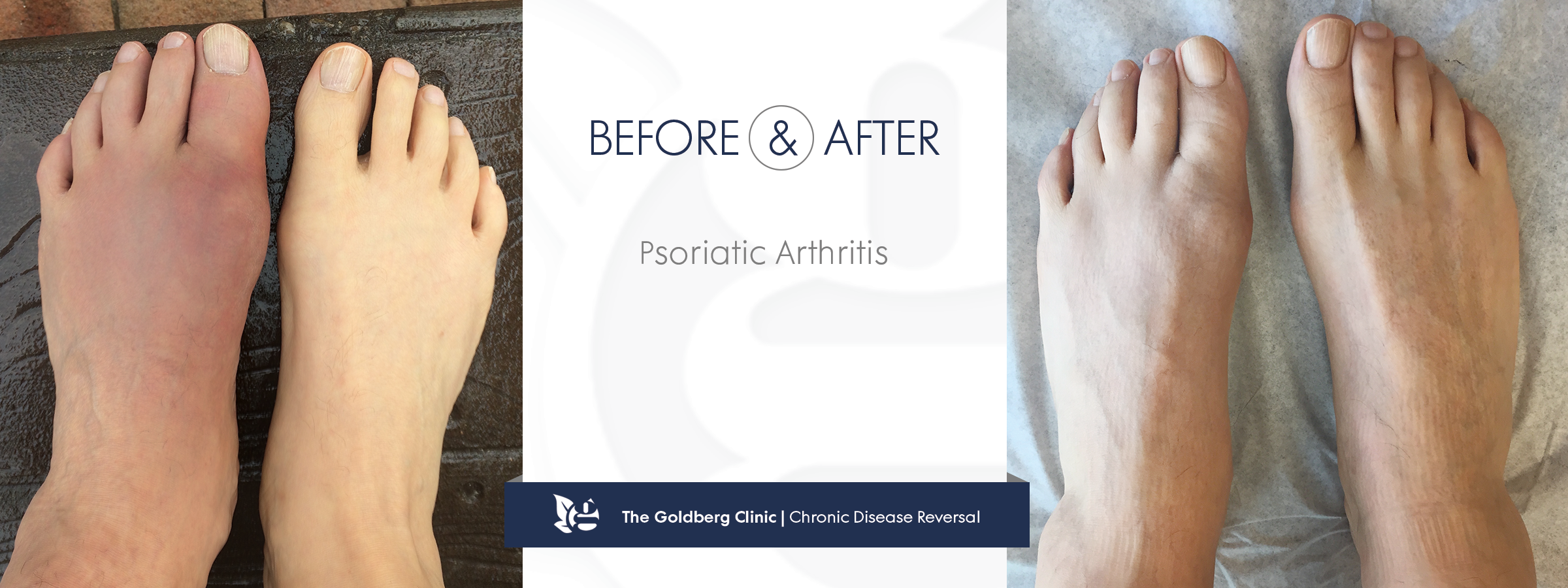 Psoriatic Arthritis Before and After