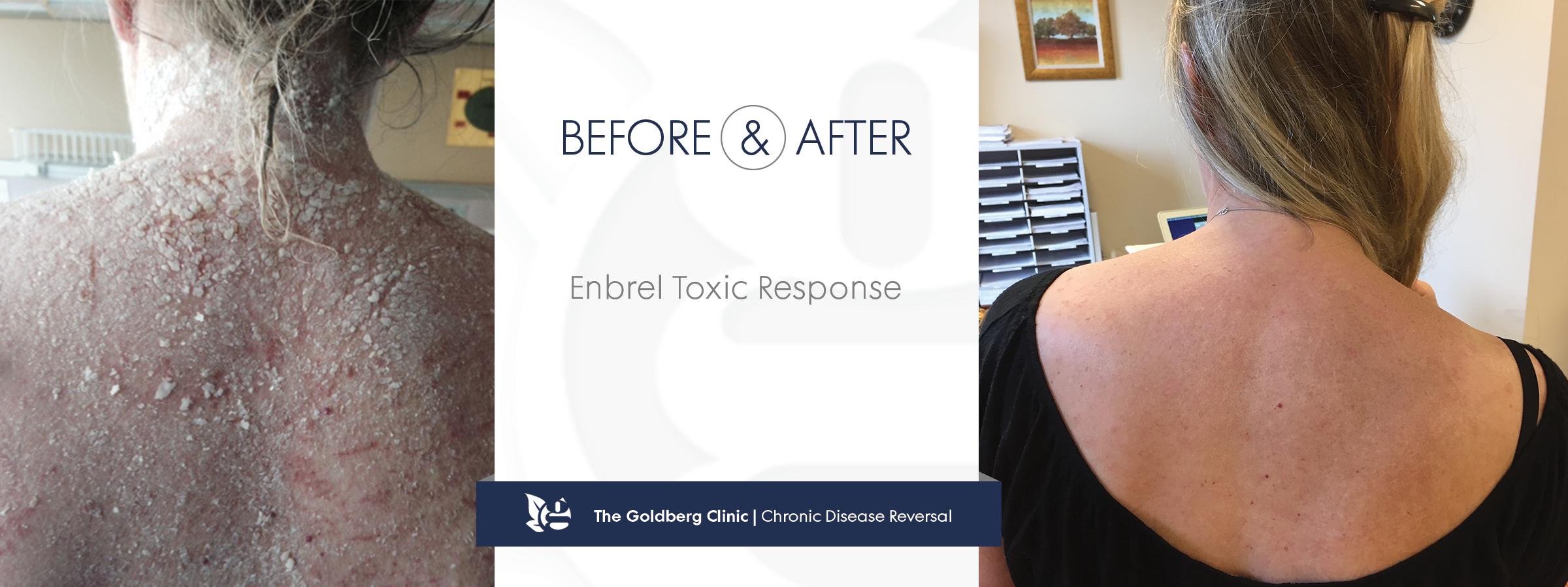 Enbrel Toxic Response
