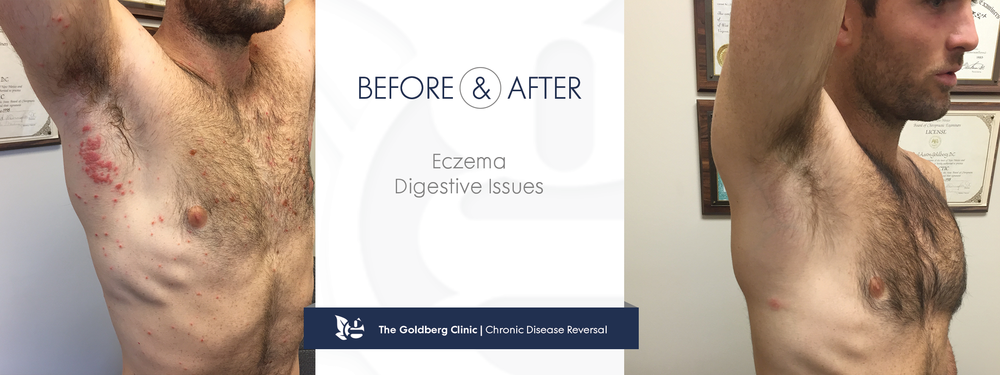 Chronic Eczema Reversed