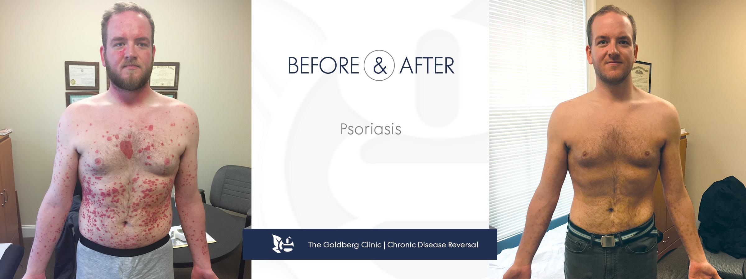 Reverse Psoriasis Naturally