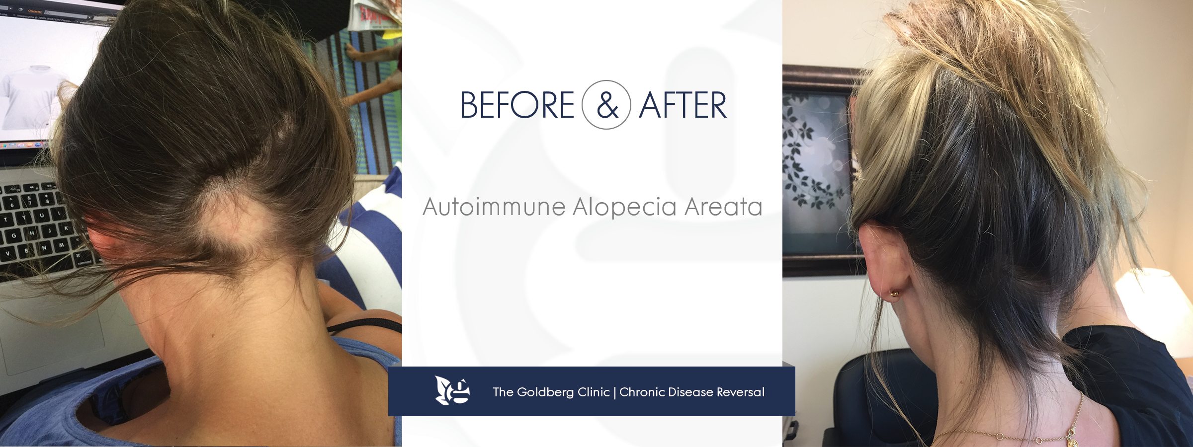 Autoimmune Alopecia Reversal