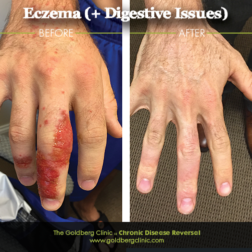 Cure and Reverse Eczema