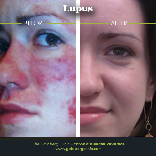 Lupus Before and After Pictures